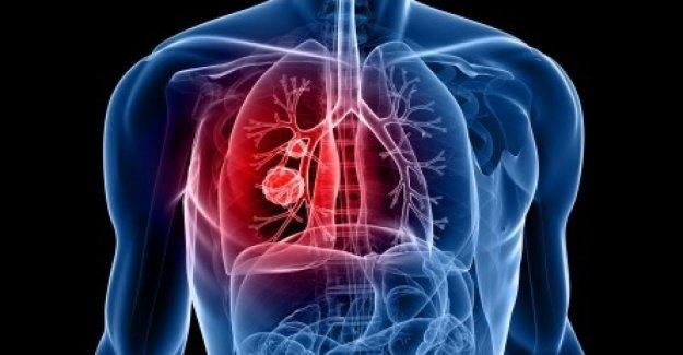 Cáncer de pulmón: el objetivo de la supervivencia