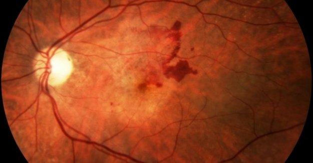 Relacionada con la edad degeneración macular terapias, más y más personalizado con menos inyecciones