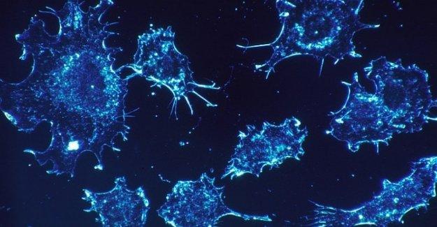 El cáncer de páncreas cáncer de colon y recto: en 30 años, el aumento de la incidencia y de la mortalidad