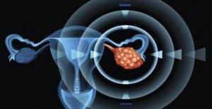 Carcinoma de ovario y de próstata, los nuevos datos de eficacia con un Parp-inhibidor