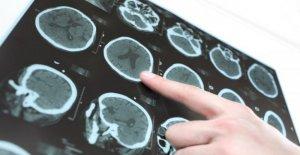 La enfermedad de Parkinson, las nuevas...