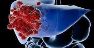 El cáncer de hígado en aumento entre...
