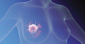 Cáncer de mama: en el Piamonte cada año, más de 4.400 nuevos casos