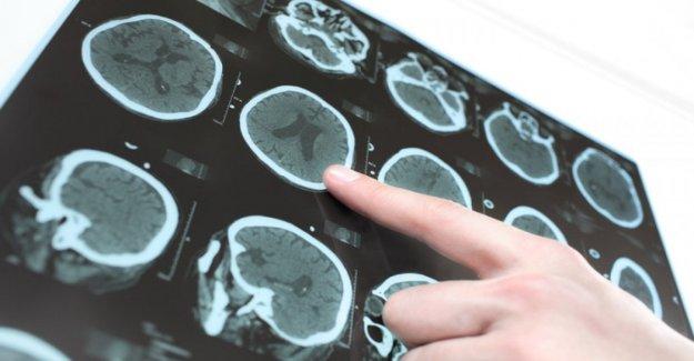 La enfermedad de Parkinson, las nuevas terapias y diagnóstico precoz gracias a una molécula