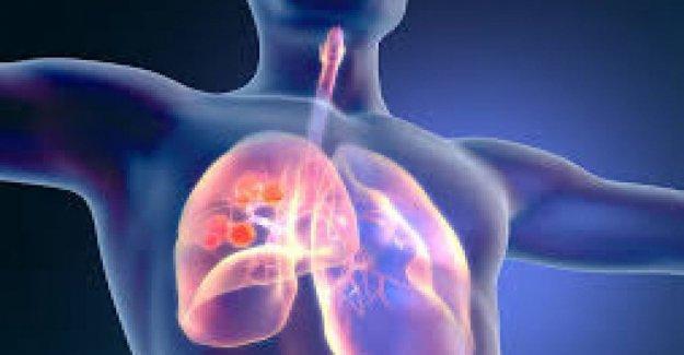 El cáncer de pulmón tumor con una mutación genética, un aumento en la supervivencia
