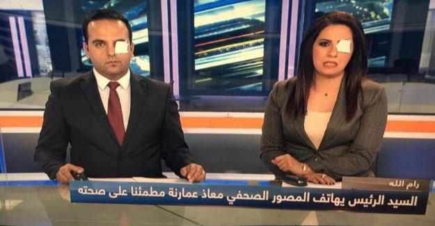 La verdad no es ciego, una campaña social en solidaridad con el periodista de los palestinos heridos