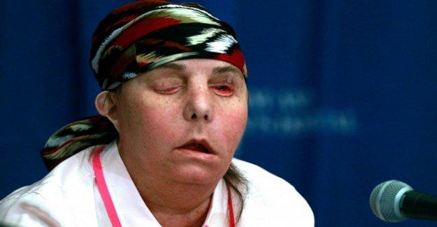 AP Exclusiva: la Mujer es el 1 en NOSOTROS para obtener el 2do transplante de cara