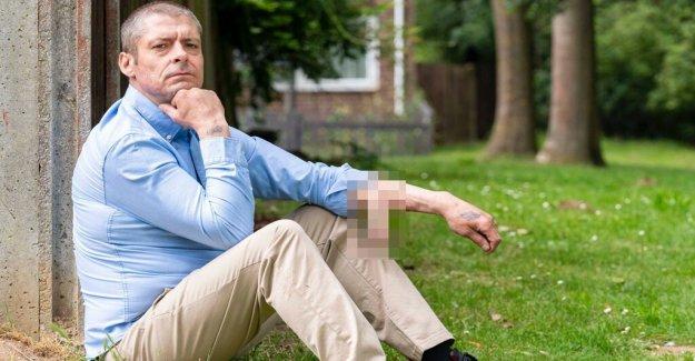 El hombre pierde el pene a la infección, el médico se construye uno nuevo en el brazo