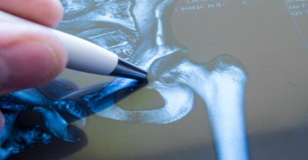 Las fracturas osteoporóticas también representan un daño grave para los hombres: estudio