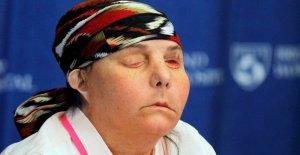 New Hampshire mujer es el primer Estadounidense que someterse a dos trasplantes de cara