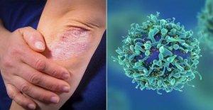 La Psoriasis asociada con un mayor riesgo de cáncer