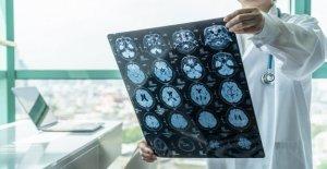 Relativo aumento de coronavirus relacionados con inflamatorias del cerebro condición, el estudio encuentra