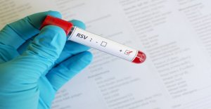 Los datos de los CDC reflejan el aumento de los casos de VSR en julio
